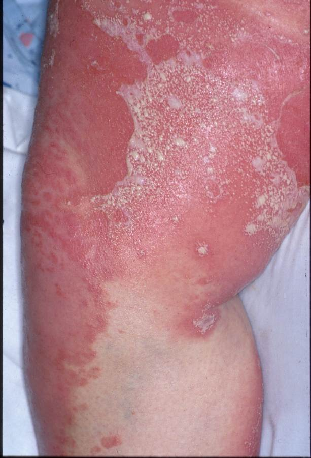 Pustular psoriasis is a type of psoriasis that leads to raised white blisters filled with noninfectious pus (pustules) 2